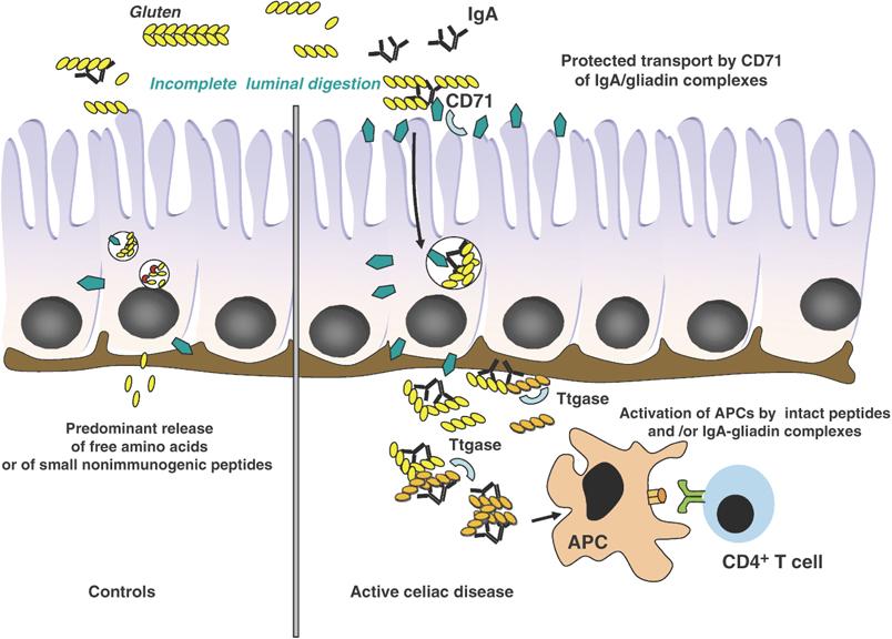 Vergleich – Darmtrakt eines Gesunden (links) und eines an Glutenunverträglichkeit leidenden Patienten (rechts). Während die Gliadin-Komplexe im linken Schaubild nahezu restlos verdaut werden können, erreichen intakte Gliadin-Peptide im rechten Bild die Lamina Propria (Schleimhäute der Mukosa) und verbinden sich mit der tissue Transglutaminse (tTG). Es folgt eine Auto-Immunreaktion (Initiierung der IgA Antikörper). Größere Mengen intakter Gliadin-Komplexe setzen lokale Adaptionsprozesse in Gang; Trigger von Toleranz zu Entzündung. Quelle: Meresse et al. (2009) [23]