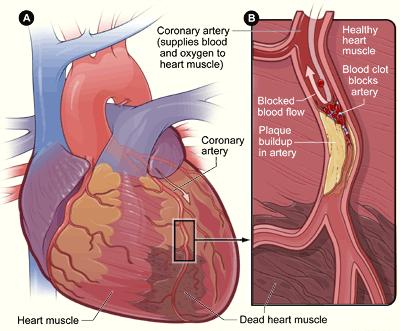 Wenn es eng wird, droht Herzinfarkt: Ansammlungen in den Arterien können zum Herztod führen. (Bildquelle: Wikipeda.de)