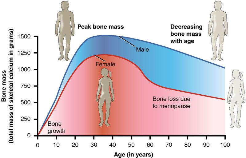 Osteoporose: Frauen sind weitaus anfälliger dafür, als Männer