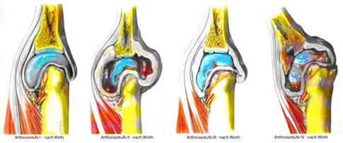 Schweres Krafttraining zerstört die Knochen & Gelenke