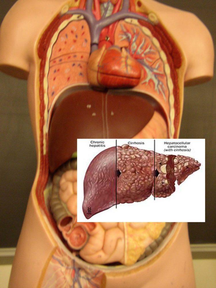 Die Leber ist das Entgiftungszentrum unseres Körpers und verfügt über eine erstaunliche Regenerationsfähigkeit. Achtet daher auf eure Lebergesundheit, so gut ihr könnt (Bildquelle: Flickr / ; CC Lizenz)
