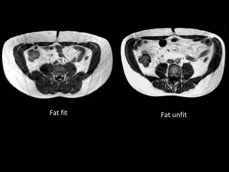 Hartnäckiges Fettgewebe: Was es ist und wie man es los wird
