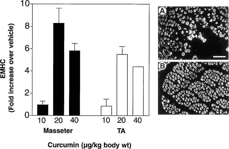 Dosisabhängiger Effekt von Curcumin auf Muskelregeneration in Kiefer- und Wadenmuskulatur (Bildquelle: Thaloor et al. (1999))
