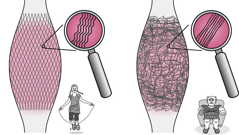 Den Körper verstehen lernen: Über Muskeln, Faszien und Dysbalancen