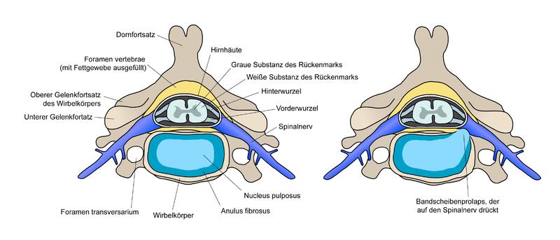Rückenschmerzen & Rückenprobleme - Teil 1: Ursache & Prävention