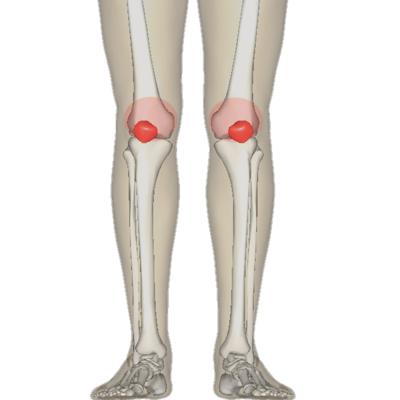 (Bildquelle: Wikimedia / BodyParts3D/Anatomography ; CC Lizenz)