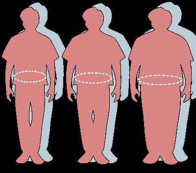 Übergewicht: König der Krankheiten