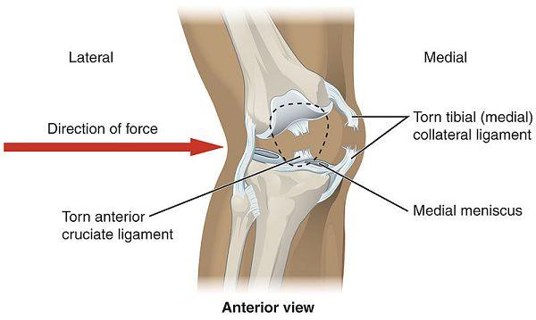 Knieproblem #4: Meniskusschäden