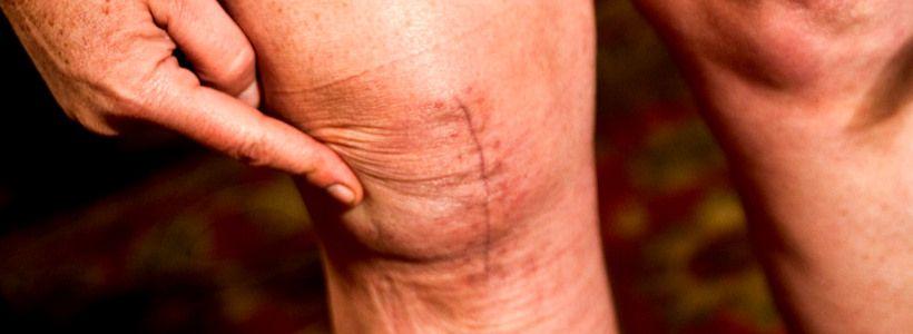 Knieprobleme & Kniegesundheit: Wie schütze ich mein Knie? – Teil 3