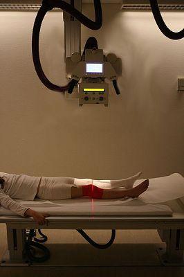 Knieschmerzen: Vorderer Kreuzbandriss: Operation - Ja oder nein?