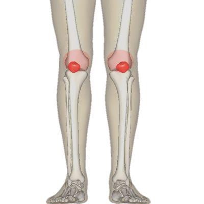 Knieprobleme & Kniegesundheit: Knorpelschaden inter der Kniescheibe (Chondropathia patellae)