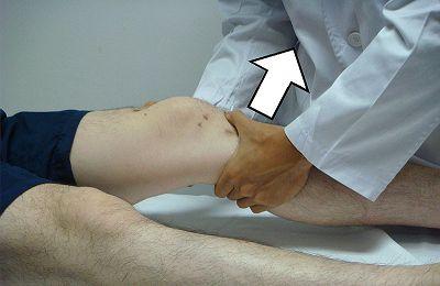Knieproblem #2: Riss des hinteren Kreuzbandes (LCP = Ligamentum cruciatum posterior)