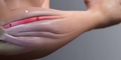 Ellenbogenschmerzen: Ursachen, Diagnose und Behandlung – Teil 1