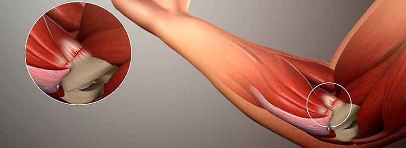 Ellenbogenschmerzen: Häufige Verletzungen und wie man sie behandelt - Teil II