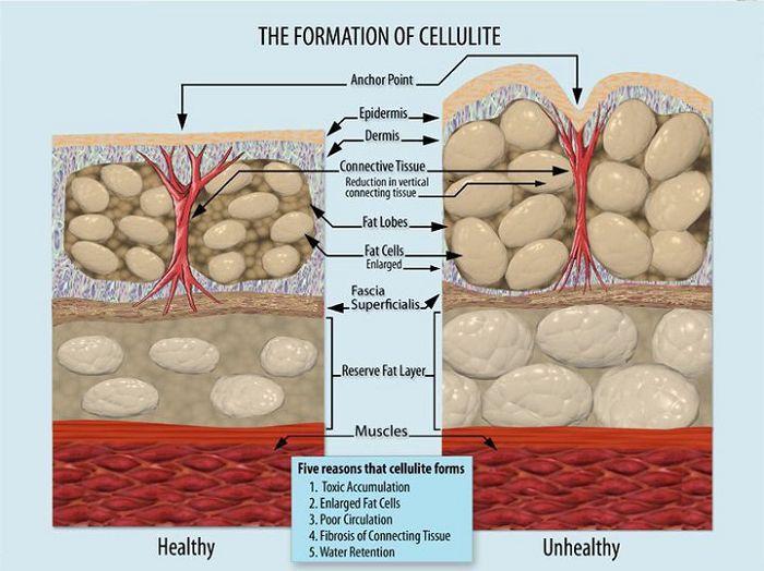 Cellulite: Entstehung und Ursachen