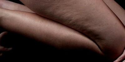 F.A.Q. #17: Hilft Abnehmen gegen Cellulite (Orangenhaut)?