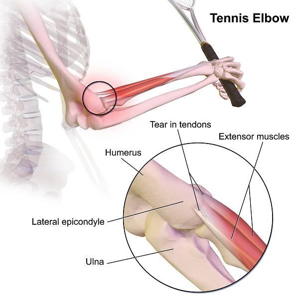 Ellenbogenschmerzen & Tennisellenbogen