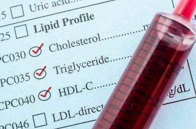 Nahrungsfette – Eine Einführung – Teil 1: Triglyceride, Cholesterin & Auswirkungen auf das Blutfettprofil