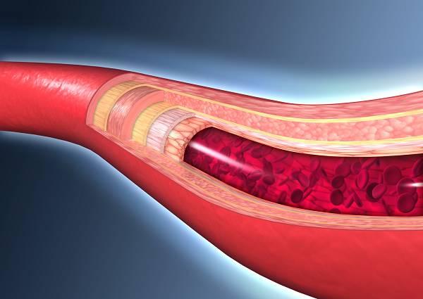 Das Endothel sind die zum Gefäßlumen nach innen gerichteten Zellen der Wandschicht von Blut- und Lymphgefäßen. Ihre Aufgabe ist vielschichtig und Teil zahlreicherphysiologischer Prozesse. Kann ein Genussmittel wie Schokolade dabei helfen unserer Herz-Kreislauf-Gesundheit zu verbessern?