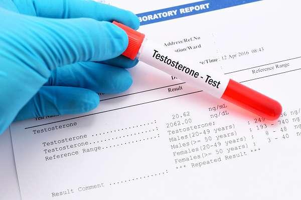 Das meiste, was heutzutage als Testosteron Booster verkauft wird, funktioniert nicht. Die Dinge, die funktionieren, tun es entweder infolge von Nährstoffmängeln (wenn du den Mangel beseitigst), wenn du unter Hypogonadismus leidest (erniedrigte Testosteronproduktion) oder haben starke Nebenwirkungen (Prohormone & Steroide). In jedem Fall solltest du vor der Einnahme einen Endokrinologen aufsuchen, der sich auf dem Gebiet auskennt, wenn du einen Testosteronmangel vermutest.