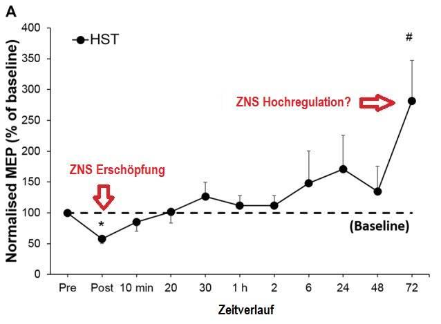 Zeitverlauf der Erschöpfung des Zentralnervensystems. MEP = motor-hervorgerufenes Potenzial, welches grob gesprochen die Stärke des Signals wiedergibt, welches vom Motor-Cortex zur beanspruchten Muskulatur gesendet wird. Eine Verringerung lässt vermuten, dass das ZNS nicht in der Lage ist die Muskulatur vollständig zu aktivieren – es kommt zur ZNS Erschöpfung.