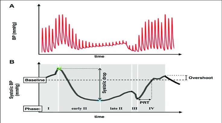 """Typische Reaktion des Blutdrucks auf ein Valsalva Manöver (A). Zwischen der Phase I und II kommt es zu einem Abfall des systolischen Blutdrucks, sowie einer anschließenden Erholung (PRT) und einem """"Overshoot"""" des systolischen Blutdrucks in Phase IV (B)."""